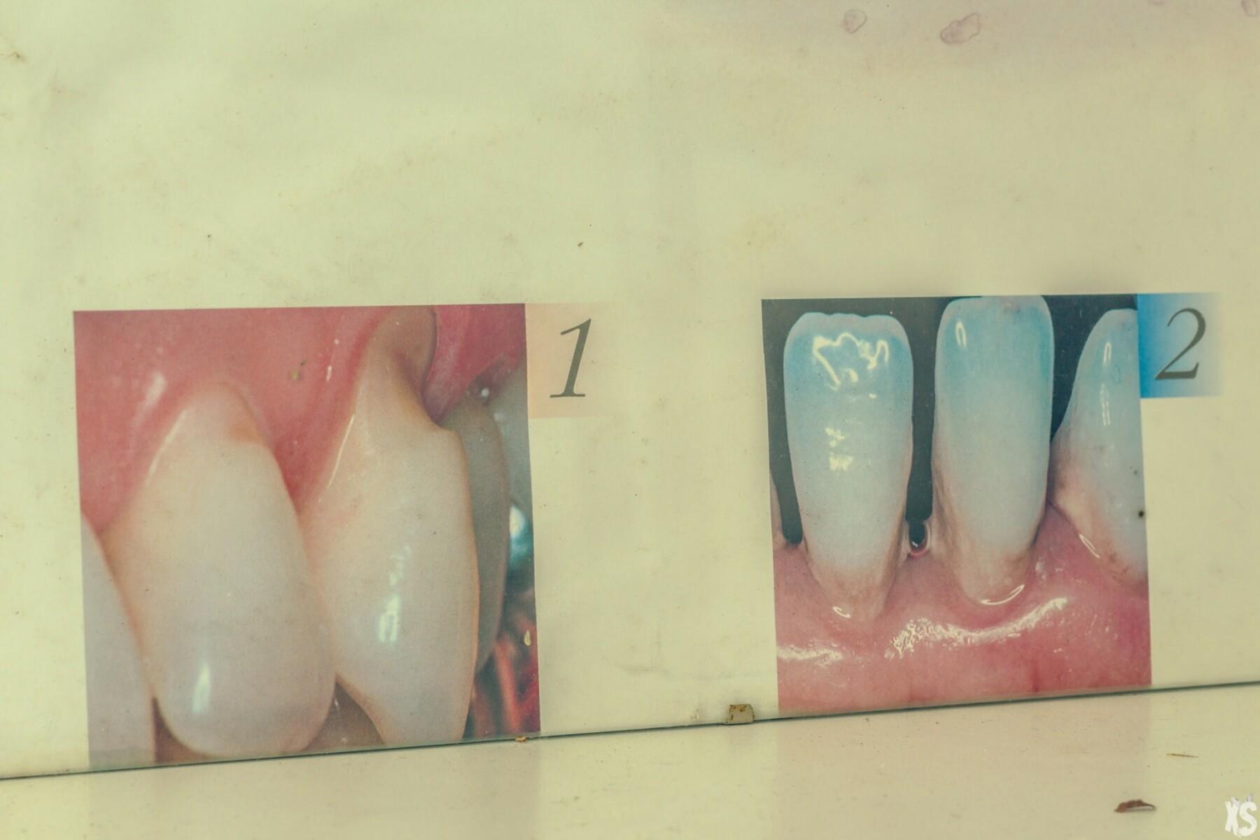 Abandoned Dentist's office - Urbex Belgium
